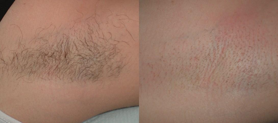 Ascella1 przed i po